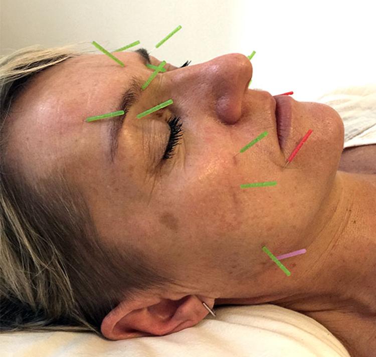 Ansigtsbehandling